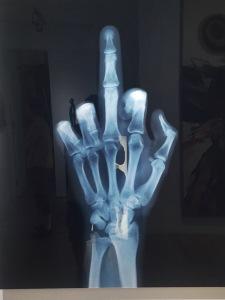 The Fickle Finger
